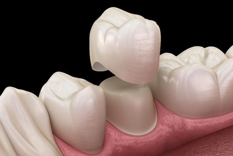 Ein wunderschönes Gebiss durch Ihre Zahnarztpraxis am Flughafen München