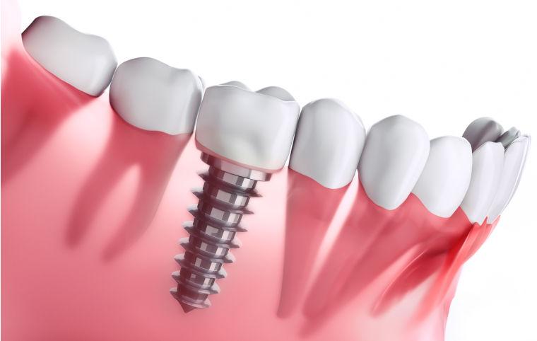 Hochwertiger Zahnersatz in Ihrer Zahnarztpraxis am Flughafen München